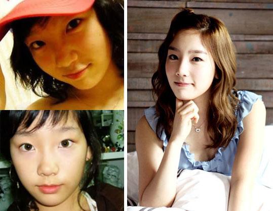 Taeyeon Snsd Plastic Surgery