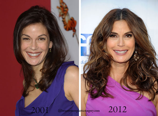 Teri Hatcher Before & After Plastic Surgery