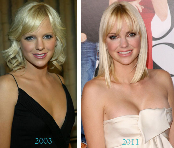 Anna Faris Plastic Surgery Before & After