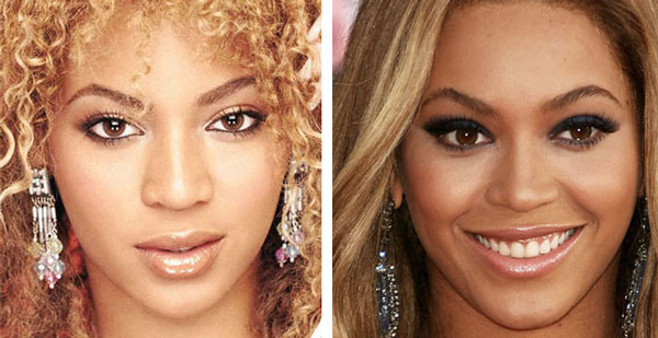 Beyonce Nose Job Before & After