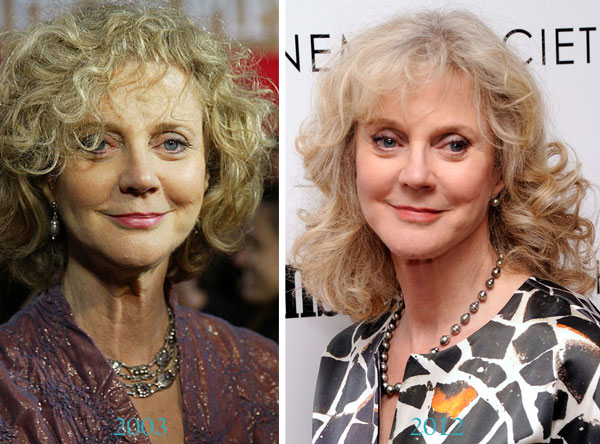Blythe Danner Plastic Surgery Before & After