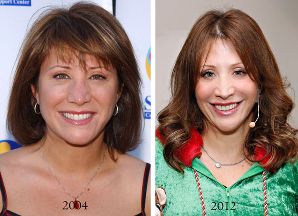 Cheri Oteri Plastic Surgery Before & After