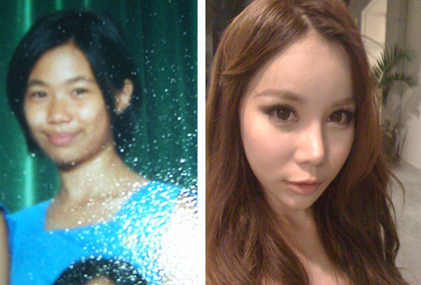 Dawn Yang Before & After Plastic Surgery