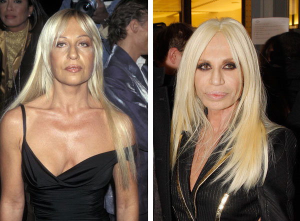 Donatella Versace Before and After Plastic Surgery