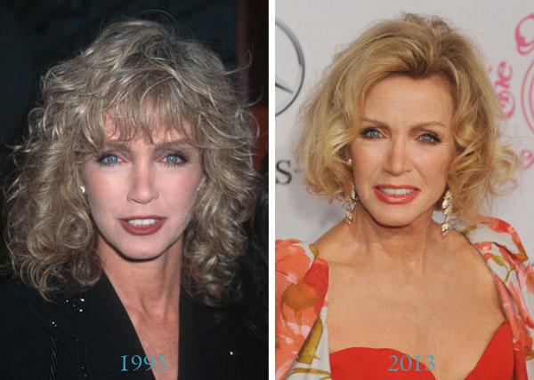 Donna Mills Before & After Plastic Surgery