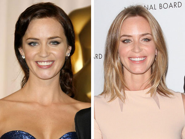 Emily Blunt Before & After Dental Veneers