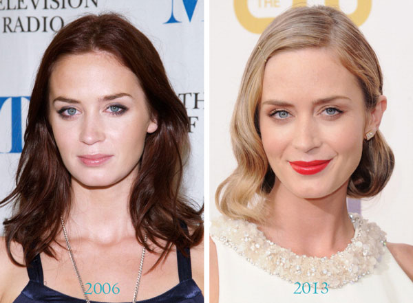 Emily Blunt Before & After Plastic Surgery
