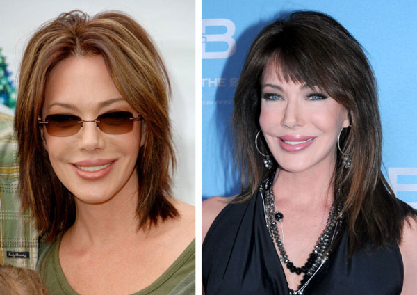Hunter Tylo Before & After Plastic Surgery