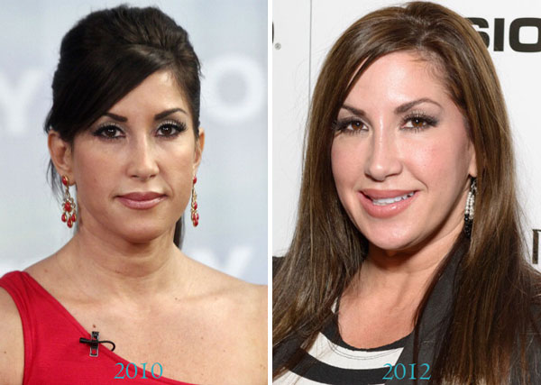 Jacqueline Laurita Plastic Surgery Before & After