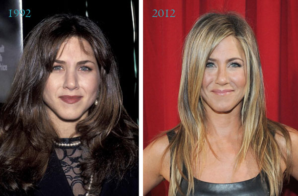 Jennifer Aniston Nose Job Before & After