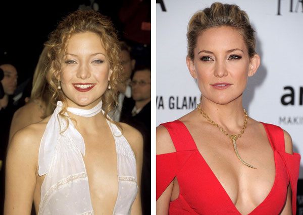 Kate Hudson Boob Job Before & After