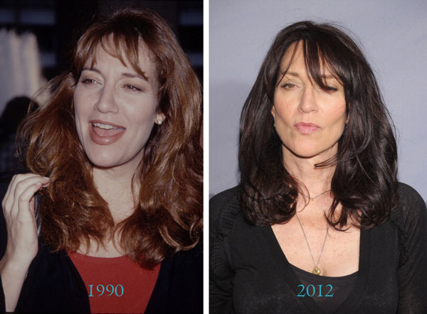 Katey Sagal Before & After Plastic Surgery