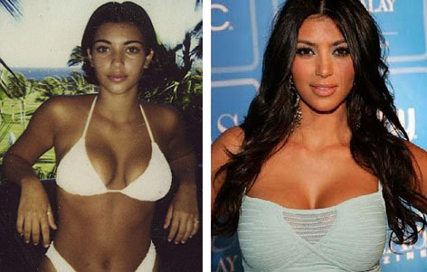 Kim Kardashian Breast Implants