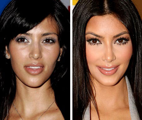 celebrity nose jobs rhinoplasty before after celebrity plastic surgery. Black Bedroom Furniture Sets. Home Design Ideas