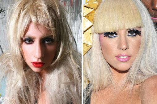 Lady Gaga Nose Job Photo