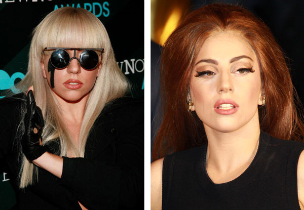 Lady Gaga Nose Job Before & After