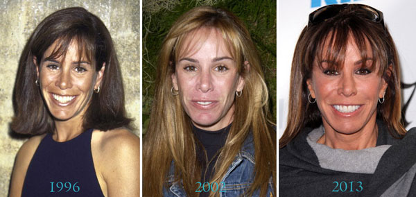 Melissa Rivers Before & After Plastic Surgery