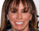 Melissa Rivers Plastic Surgery