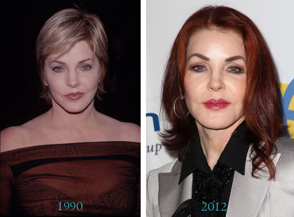 Priscilla Presley Before & After Plastic Surgery