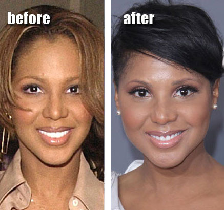 Toni Braxton Before & After Plastic Surgery