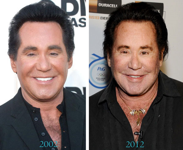 Wayne Newton Before & After Plastic Surgery