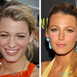 Blake Lively Nose Job Before and After Photos