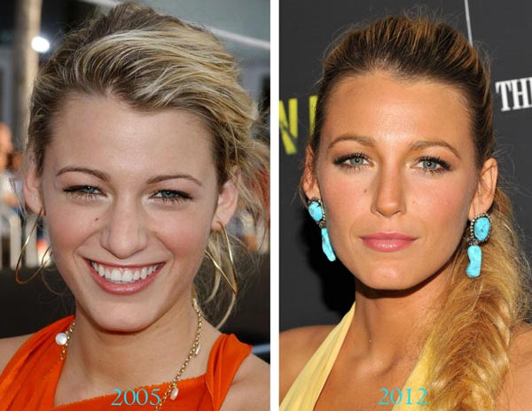 Blake Lively Before After Nose Job