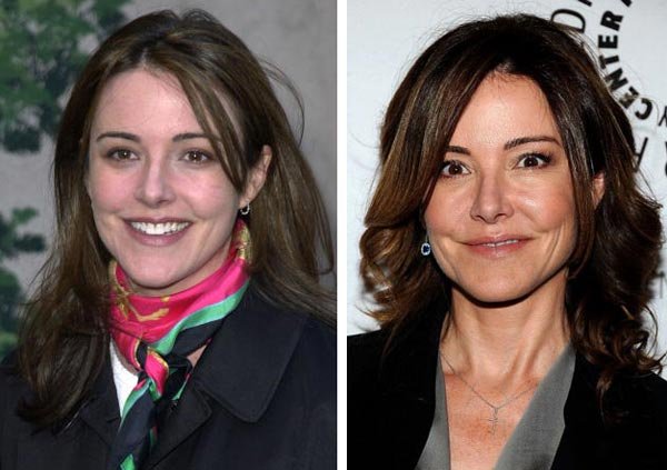 Christa Miller Before After Plastic Surgery