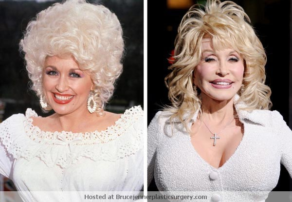 Dolly Parton Before After Plastic Surgery
