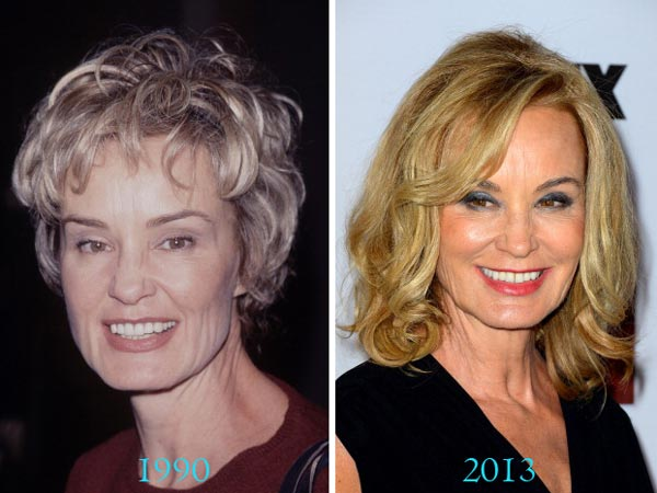 Jessica Lange Before After Plastic Surgery