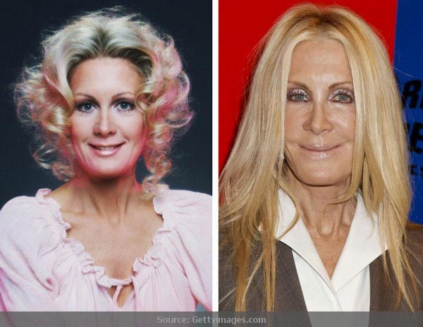 Joan Van Ark Before After Plastic Surgery