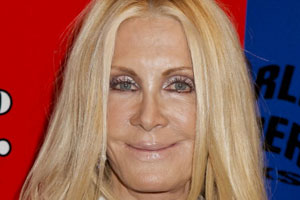 Joan Van Ark Plastic Surgery