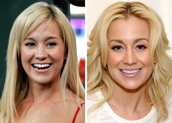 Kellie Pickler Before After Plastic Surgery