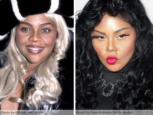 Lil Kim Before After Plastic Surgery