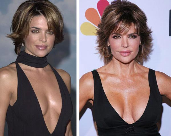 Lisa Rinna Breast Implants Before After