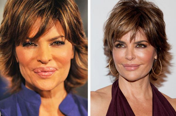 Lisa Rinna Lips Reduction
