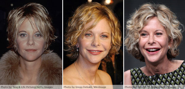 Meg Ryan Before After Plastic Surgery