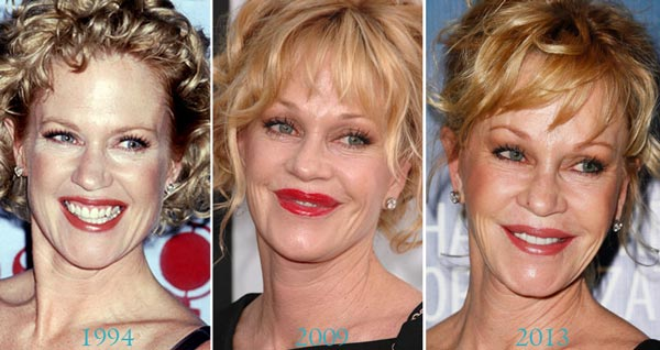 Melanie Griffith Before After Plastic Surgery