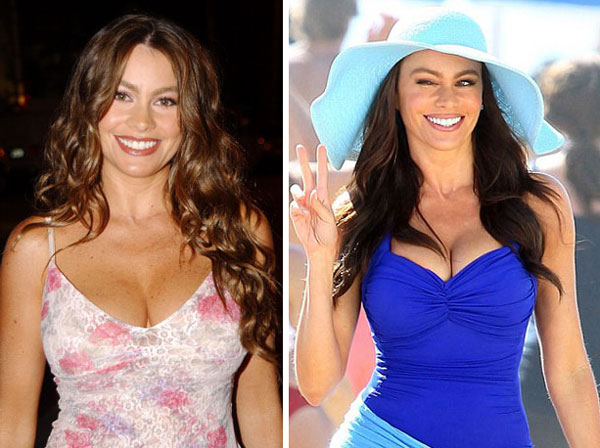 Sofia Vergara Breast Implants Before After