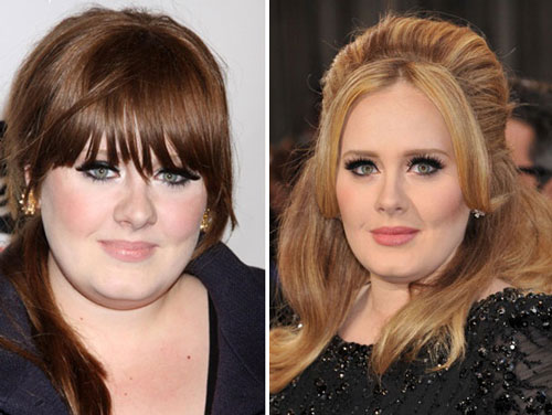 Adele Nose Job