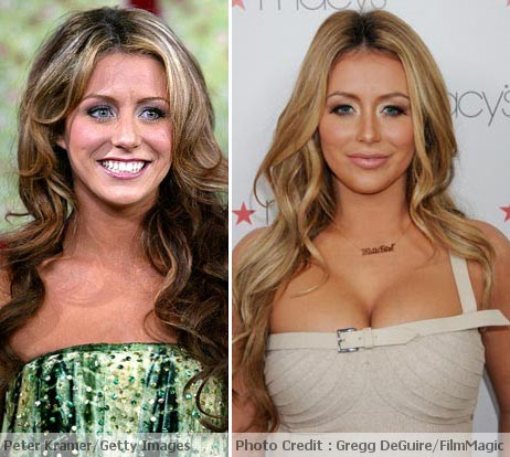 Aubrey O'Day Plastic Surgery Before After