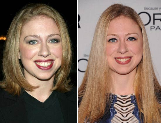 Chelsea Clinton  Plastic Surgery
