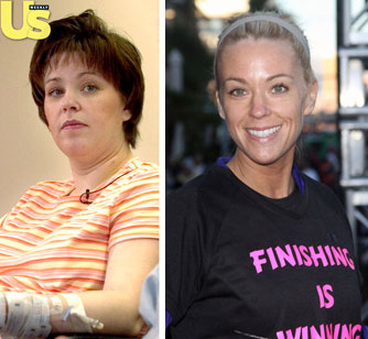 Kate Gosselin Chin Implants