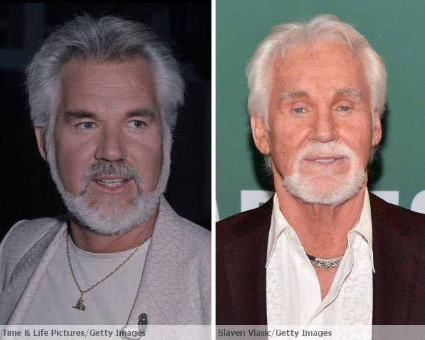 Kenny Rogers Plastic Surgery Before After