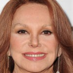 Did Marlo Thomas Have Plastic Surgery?