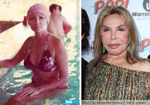 Elsa Patton Plastic Surgery Before After