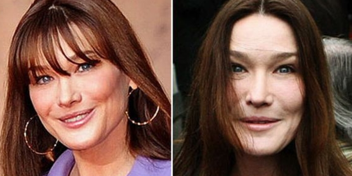 Carla Bruni Before and After Surgery