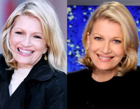 Diane Sawyer Plastic Surgery Before and After