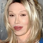 Pete Burns Disastrous Plastic Surgeries