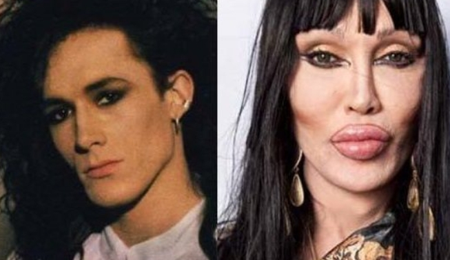 Pete Burns Plastic Surgery Before and After